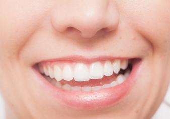 メタルフリーとは、銀歯などの金属を使わずにセラミックやジルコニアなどのノンメタルの素材を使って治療をすることを言います。オールセラミックとは、生体親和性の高いセラミック材料を使用したオーダーメイドの冠(クラウン)です。これにより金属アレルギーや金属イオンによる歯茎の黒ずみが解消され、見た目にも美しく天然歯に近い自然な色と輝きで、時間を経てもその美しさが保たれます。今後、メタルフリー治療は主流になっていくと考えられています。興味のある方はお気軽にご相談ください。