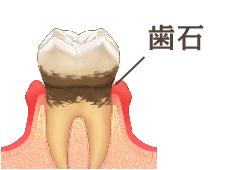 歯磨きでは取り除けない歯垢は、その後歯石になります。