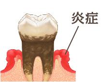 歯石を放っておくと菌が繁殖し、歯茎の炎症が起こります。